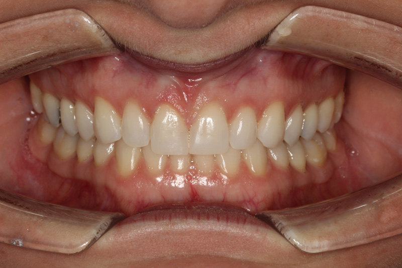 Invisalign Patient After