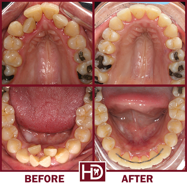 Teeth that were straightened with Invisalign before and after