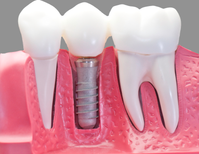 Capped dental implant Local Family Dentistry in Salem OR