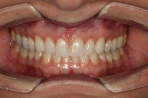 Invisalign Orthodontics Local Family Dentistry in Salem OR