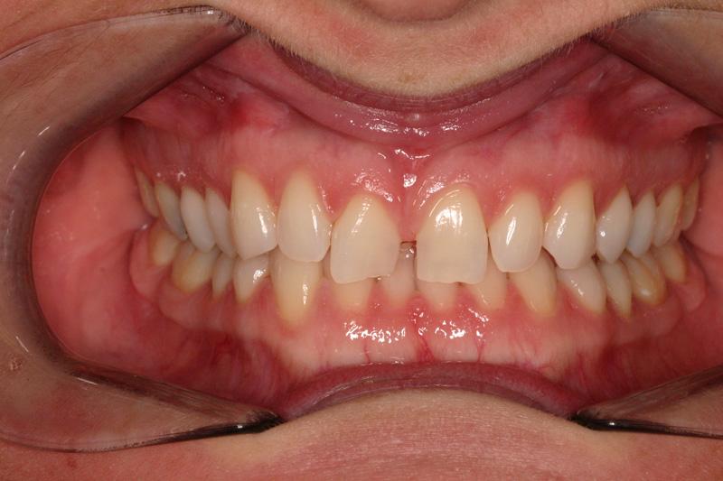 Invisalign Local Family Dentistry in Salem OR