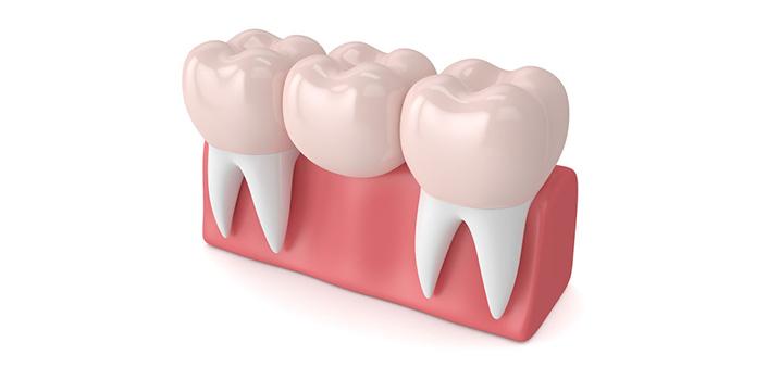 Dental Bridges Family Dentist in Salem Oregon