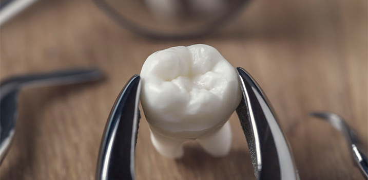 Extraction Treatment Local Family Dentist in Salem Oregon