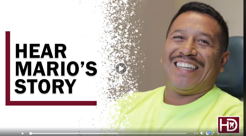 Mario shares his experience with Teeth Whitening at Hunsaker Dental