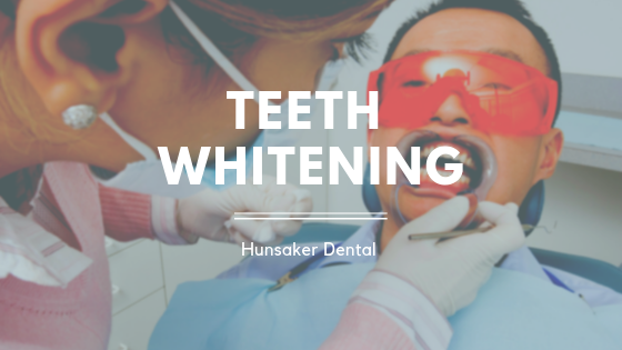 Teeth Whitening Local Family Dentist in Salem OR
